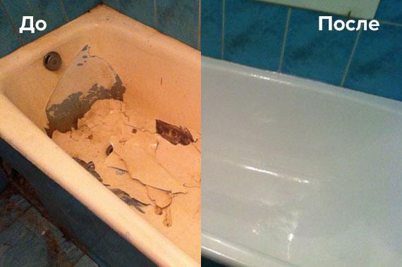 Фото реставрации жидким акрилом до и после